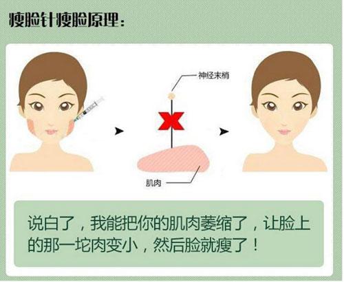 瘦脸针一针的剂量_潍坊打一针瘦脸针多少钱一支?